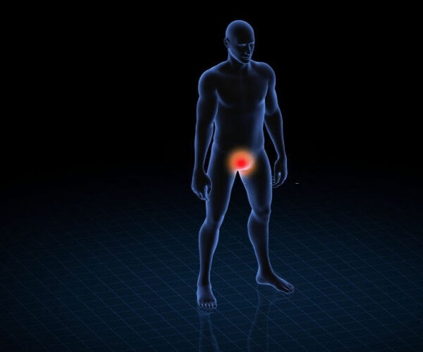 Hiperplasia de la próstata